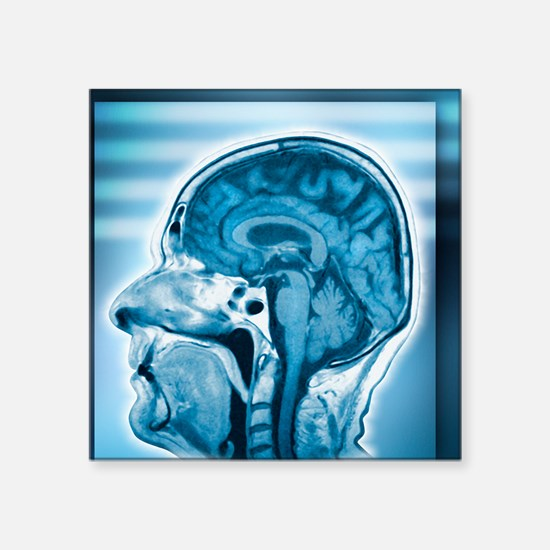 "Normal head and brain, MRI  Square Sticker 3"" x 3"""