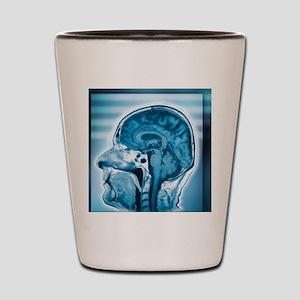 Normal head and brain, MRI scan Shot Glass