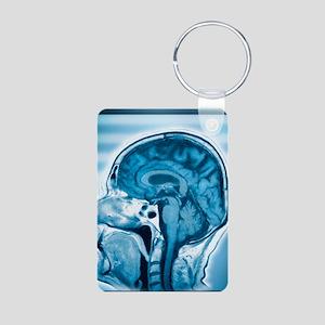 Normal head and brain, MRI Aluminum Photo Keychain