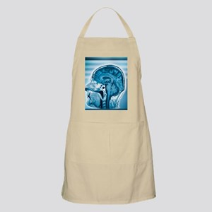 Normal head and brain, MRI scan Apron