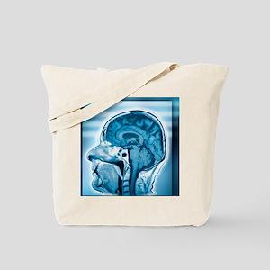 Normal head and brain, MRI scan Tote Bag