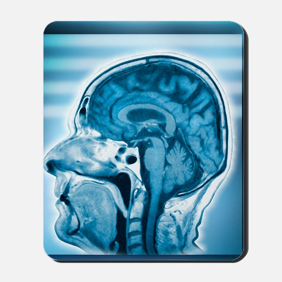 Normal head and brain, MRI scan Mousepad