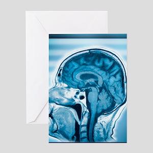 Normal head and brain, MRI scan Greeting Card