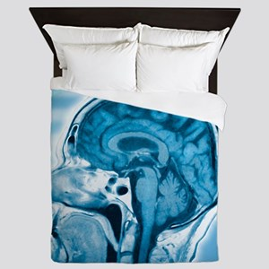 Normal head and brain, MRI scan Queen Duvet