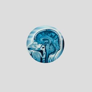 Normal head and brain, MRI scan Mini Button
