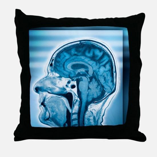Normal head and brain, MRI scan Throw Pillow