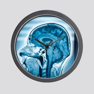 Normal head and brain, MRI scan Wall Clock