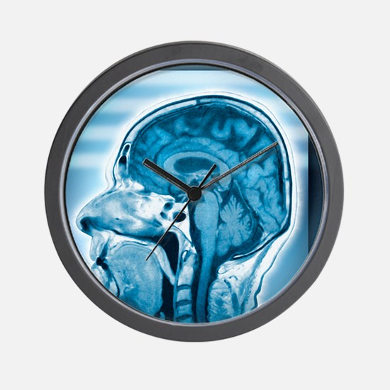 Normal head and brain, MRI scan Wall Clock