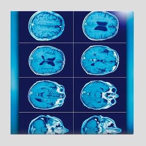 Normal brain, CT scans Tile Coaster