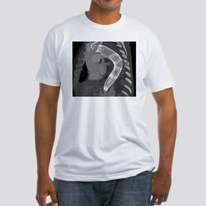 Stent to treat aortic aneurysm, CT  Fitted T-Shirt