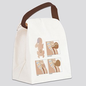Spina bifida, artwork Canvas Lunch Bag