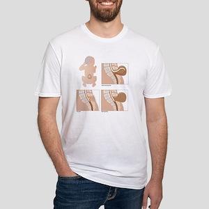 Spina bifida, artwork Fitted T-Shirt