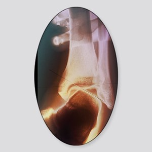 Sprained ankle, X-ray Sticker (Oval)