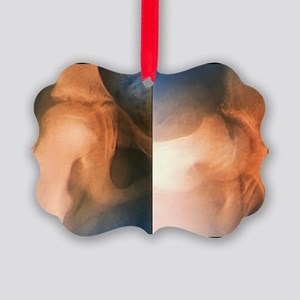Slipped end of thigh bone, X-ray Picture Ornament