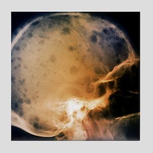Skull in bone marrow cancer, X-ray Tile Coaster