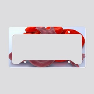 Sickle cell anaemia, artwork License Plate Holder