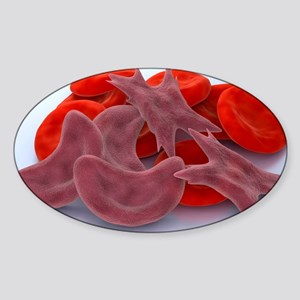 Sickle cell anaemia, artwork Sticker (Oval)
