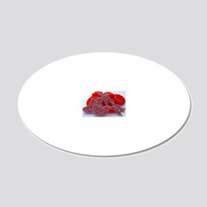 Sickle cell anaemia, artwork 20x12 Oval Wall Decal