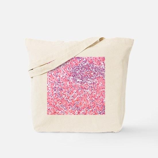 Leukaemia blood cells, light micrograph Tote Bag