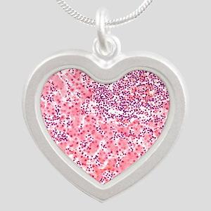 Leukaemia blood cells, light Silver Heart Necklace