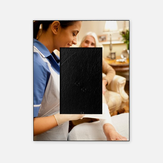 Leg ulcer treatment Picture Frame