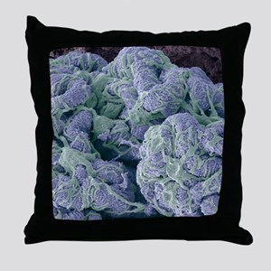 Kidney glomerulus, SEM Throw Pillow