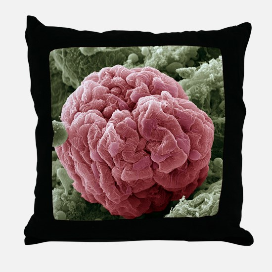 Kidney glomerulus, SEM Throw Pillow