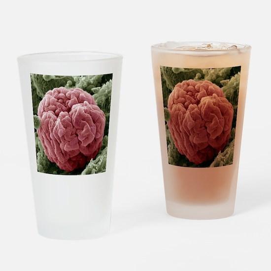 Kidney glomerulus, SEM Drinking Glass