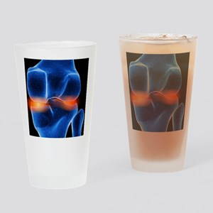 Inflamed knee cartilage, computer a Drinking Glass
