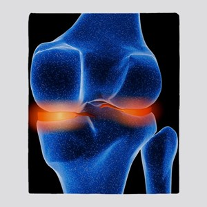 Inflamed knee cartilage, computer ar Throw Blanket