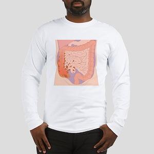 Ruptured appendix, artwork Long Sleeve T-Shirt