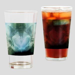 Rheumatoid arthritis of the hip, X- Drinking Glass