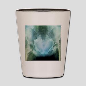 Rheumatoid arthritis of the hip, X-ray Shot Glass