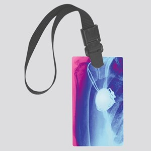 Heart pacemaker, X-ray Large Luggage Tag