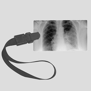 Pulmonary consolidation, X-ray Large Luggage Tag