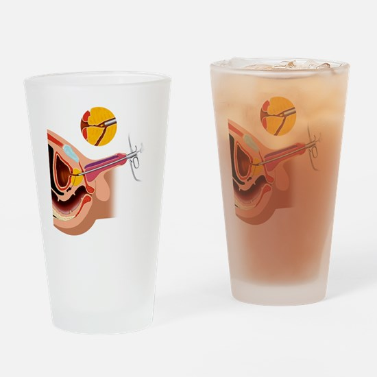 Prostate gland surgery, artwork Drinking Glass