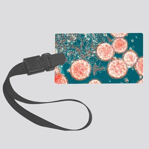 Stem cells, light micrograph Large Luggage Tag