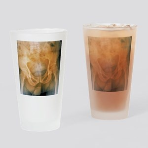 Pelvis with a leaning posture, X-ra Drinking Glass