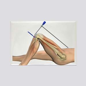 Partial knee replacement, artwork Rectangle Magnet