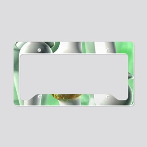Osteoarthritis, artwork License Plate Holder