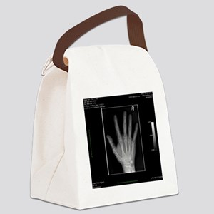 Normal hand, digital X-ray Canvas Lunch Bag