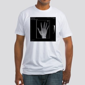 Normal hand, digital X-ray Fitted T-Shirt