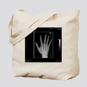 Normal hand, digital X-ray Tote Bag