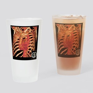 Ribcage and blood vessels, 3D CT sc Drinking Glass
