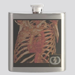Ribcage and blood vessels, 3D CT scan Flask