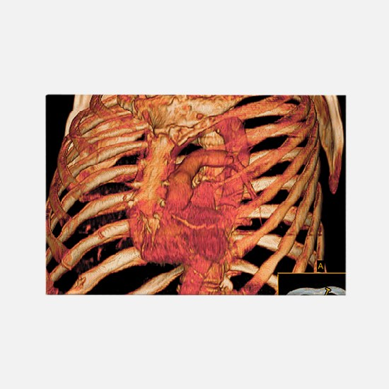 Ribcage and blood vessels, 3D CT  Rectangle Magnet