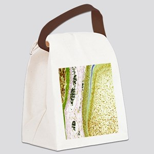 Developing tooth, light micrograp Canvas Lunch Bag