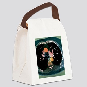 Pulmonary embolism, CT scan Canvas Lunch Bag