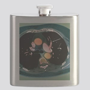 Pulmonary embolism, CT scan Flask