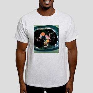 Pulmonary embolism, CT scan Light T-Shirt